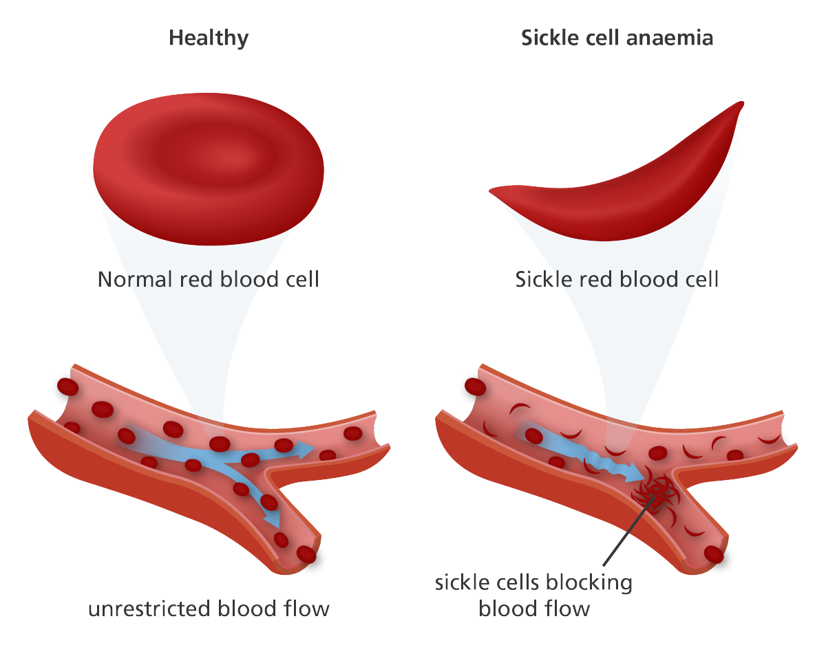 What is Sickle Cell Disorder